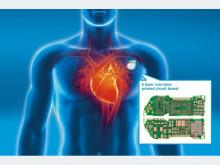 Extrem kompakte Herzschrittmacher können nur mit einer besoonderen Verbindungstechnik realisiert werden. AT&S